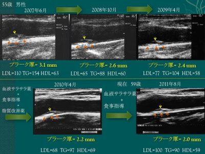 血管プラーク改善の写真