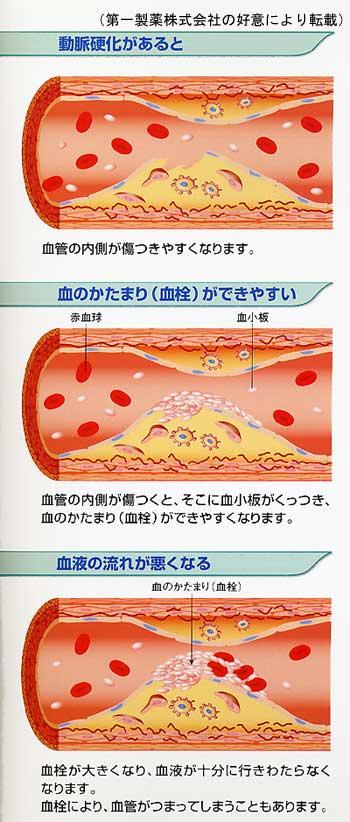 プラークの成り立ちについて説明した図
