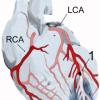 急性心筋梗塞の症状とその体験記その3